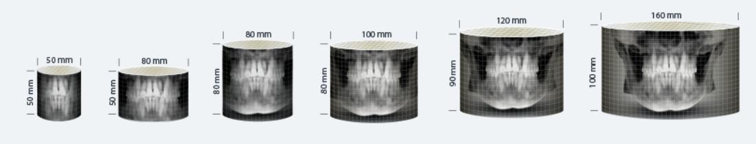 Vatech Pax-i 3D Green 16x10 SC - Young's Dental